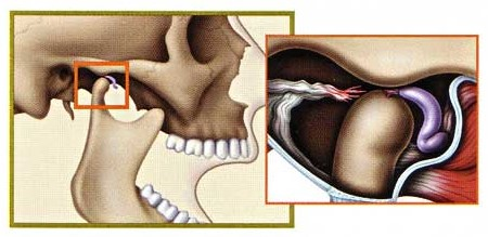 The slip forward of temporomandibular joint disk